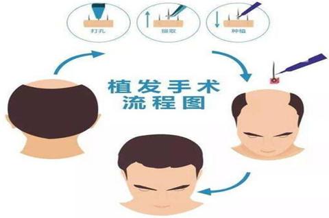 头发移植商标类别的选择是怎样的?